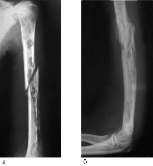 лечение периартрита лучезапястного сустава