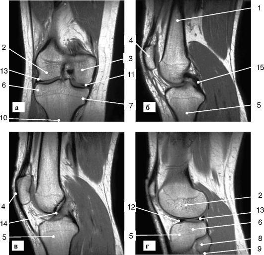 Хондрома коленного сустава на мрт гибкие суставы хруст
