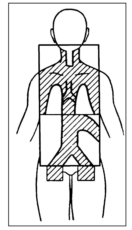 Лимфома Ходжкина. Схема