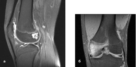 Мрт образование в коленном суставе что такое анкилоз коленного сустава в функционально невыгодном положении