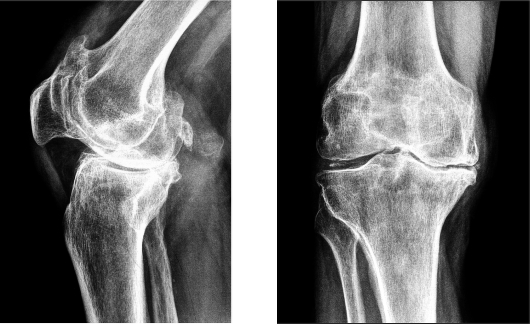 Костно-суставной туберкулез рентген дисфункция сустава и мышц