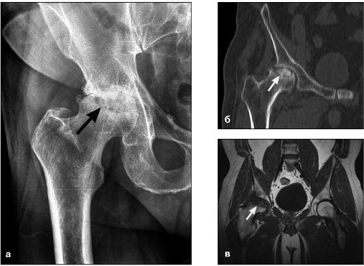 Опухолевые процессы костей и мягких тканей в проекции суставов аркоксия при асептическом некрозе тазобедренных суставов
