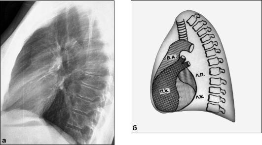 Рентгенограмма (а) и схема (б)