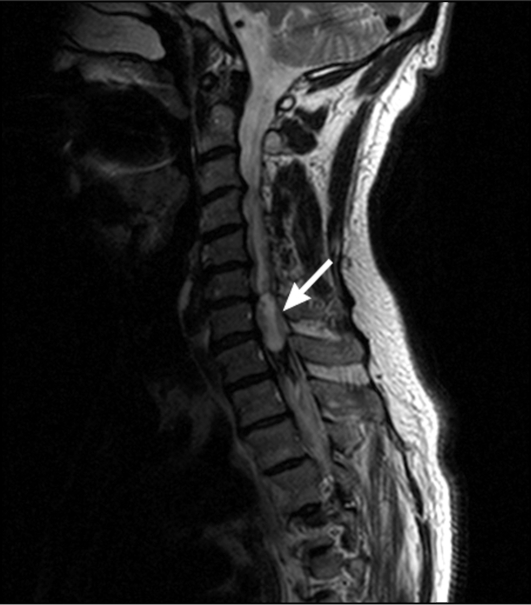 Опухоли спинного мозга фото