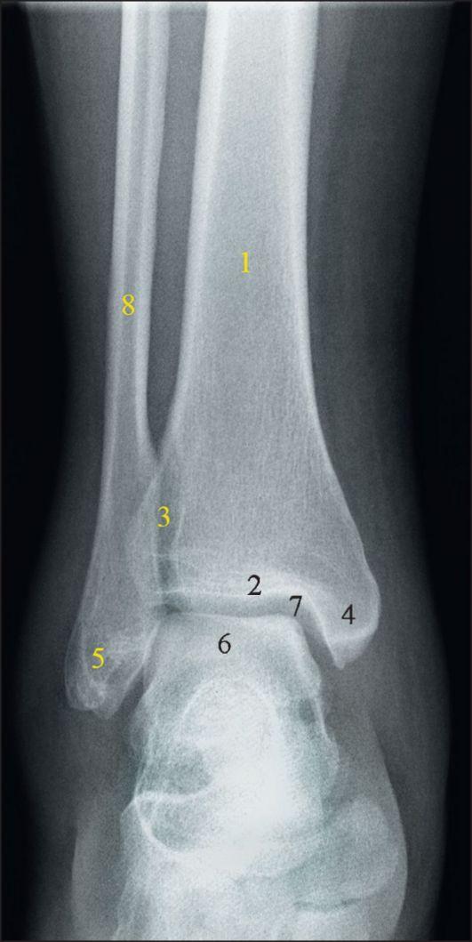 Рентгенография здорового голеностопного сустава доа голеностопного сустава 1 степени