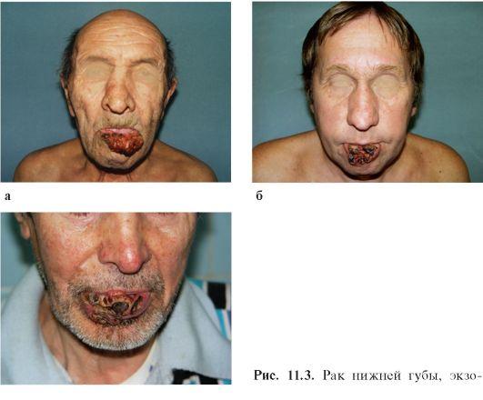 Можно ли вылечить хламидиоз кларитромицином