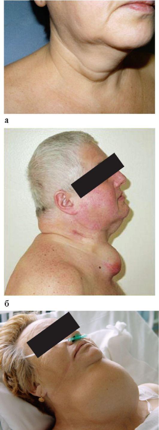 Синдром Сиппла фото
