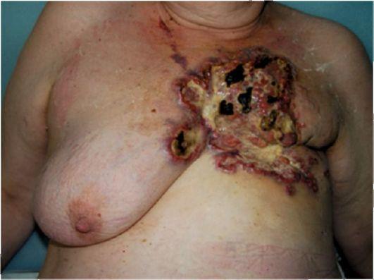 Болезнь щитовидной железы и ее лечение