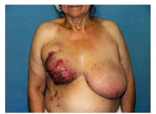 Розовые угри лечение лазером отзывы