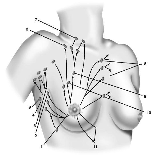 узлы молочной железы с