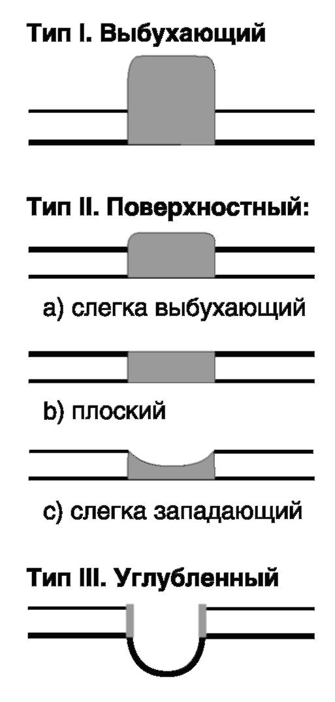 Рак Желудка Диффузный фото