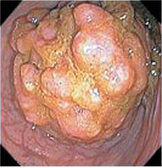 Рак ректосигмоидного отдела