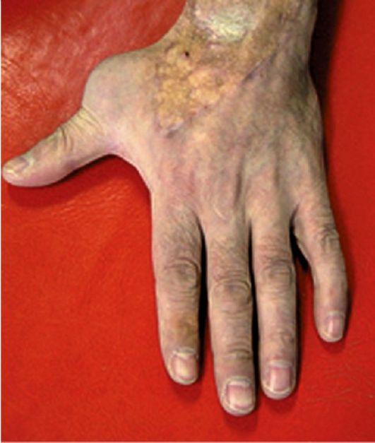 Опухоли костей злокачественные фото