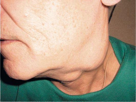 фото рака лимфатических узлов