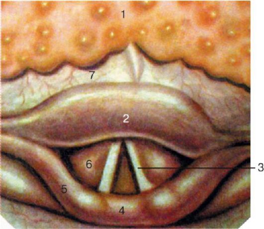Язычная миндалина: 1 - язычная миндалина; 2 - надгортанник; 3 - голосовая складка; 4 - межчерпаловидное пространство...