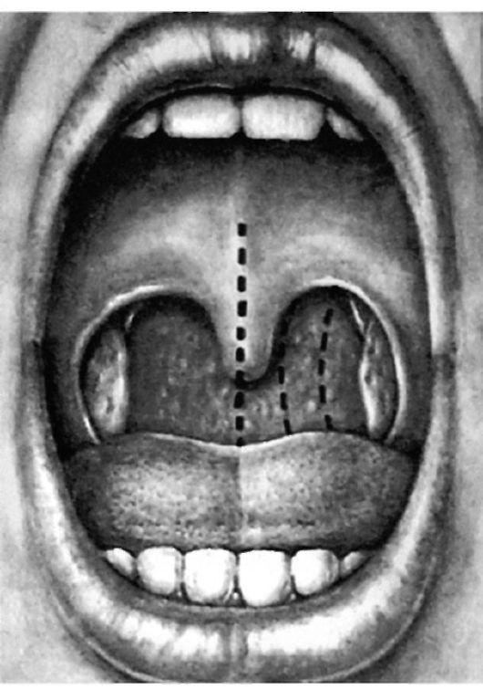 Гипертрофия небных миндалин у ребенка как лечить