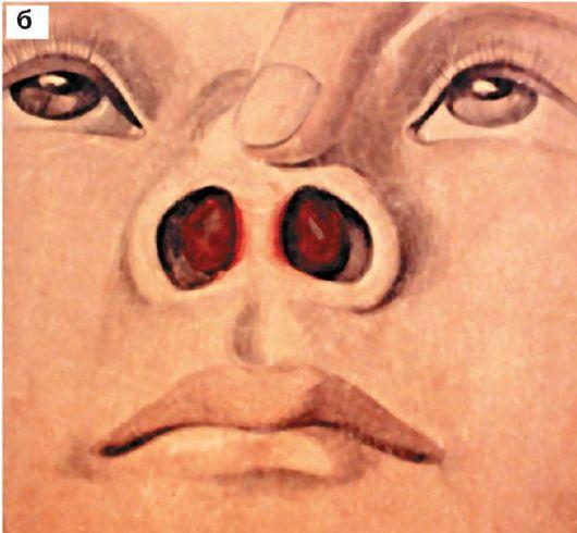 Абсцесс перегородки носа: а