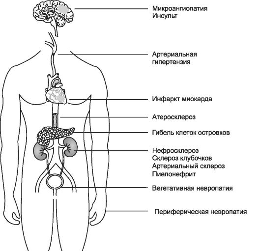 Инсулина в украине