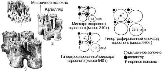 схема гипертрофии миокарда при его перегрузке объемом