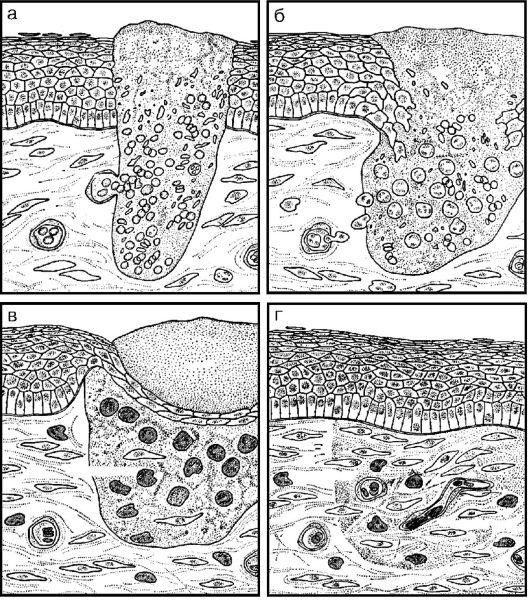 Глава 13 патофизиология тканевого
