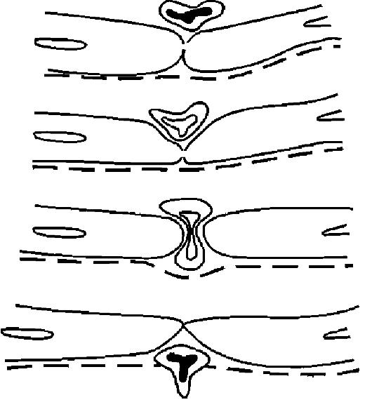 Схема эмиграции лейкоцитов (по