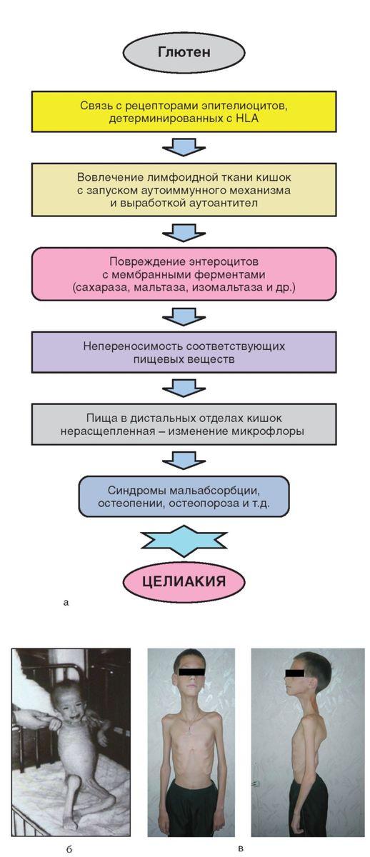 Целиакия: а - схема патогенеза