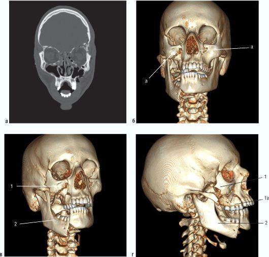 Множественные переломы костей