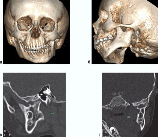 Деформирующий артроз височно-челюстного сустава комплекс упражнений при переломе локтевого сустава видео