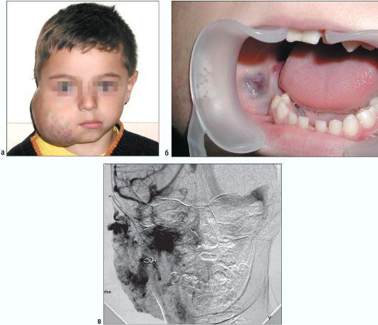 венозная ангиодисплазия у детей