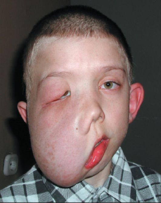 Нейрофиброматоз фото