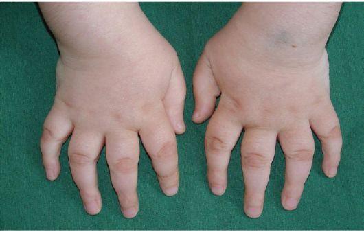 артрит левого голеностопного сустава Артрит голеностопного сустава: лечение и симптомы