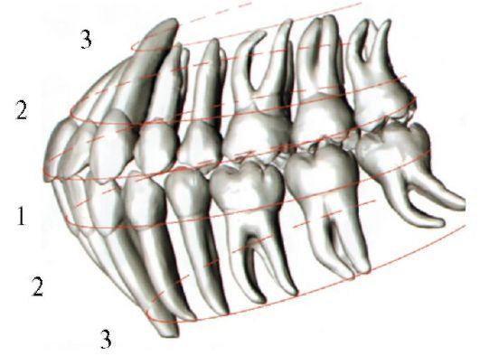 Зубные дуги: