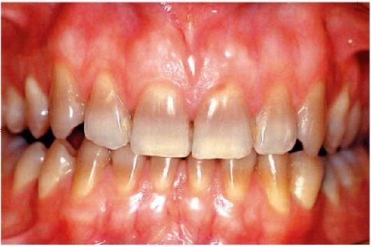 эмаль фото разрушенная зубов