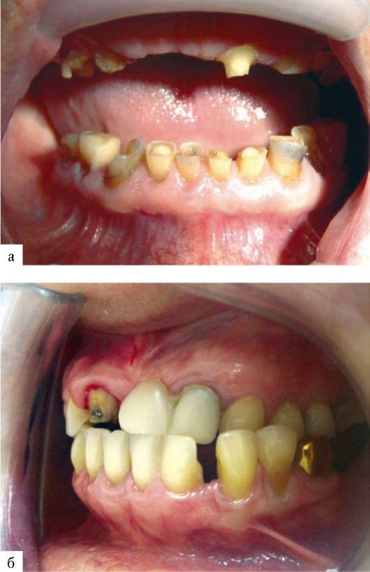 Опорные зубы требования