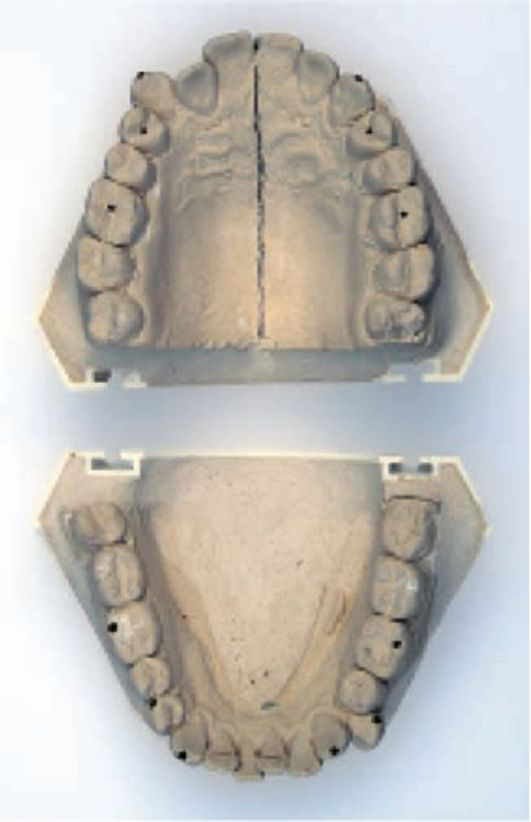 Пантомограмма Зубов