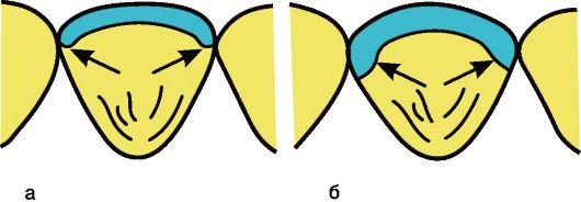 Индивидуальный подбор формы и цвета винира