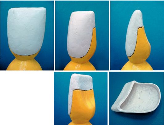 Виниры для зубов класса а