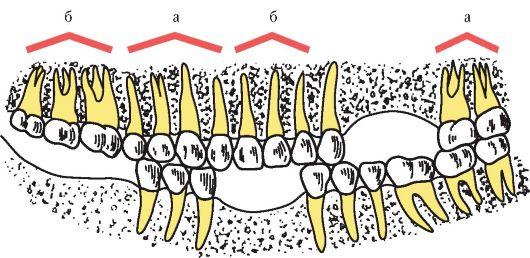 Распад зубных рядов на