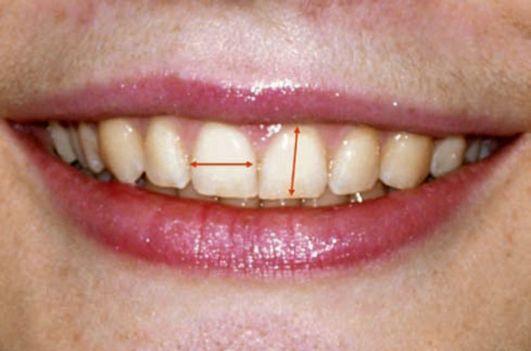 Диастем между зубами