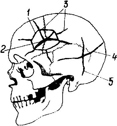 Схема образования трещин