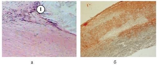 Атеросклероз патогенез и лечение