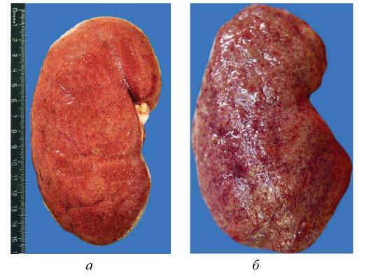 Сп профилактика вирусных гепатита в