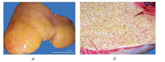 Как лечить печень тмином