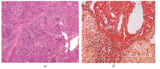 Как лечат гепатит w