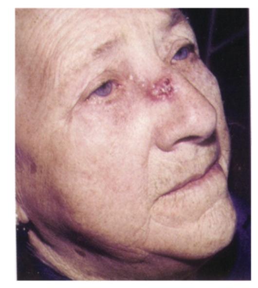 дискератоз кожи лица фото