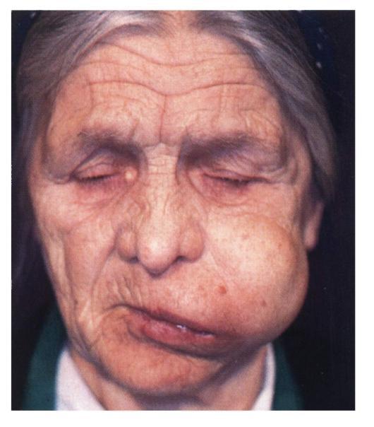 Фото раком и в рот крупный план 9 фотография