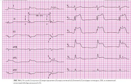 Инфаркт миокарда на экг: расшифровка