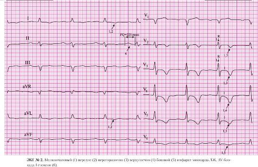 лекарства после инфаркта миокарда список