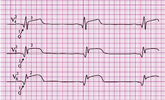 экг картинки инфаркт миокарда
