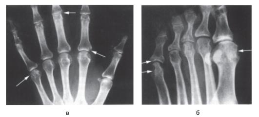 Транзиторным недеформирующим артритом котором поражается несколько суставов почти половин диагностика суставов медицинские центры